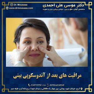 مراقبت های بعد از آندوسکوپی بینی