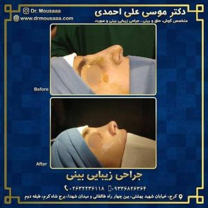 جراحی بینی فانتزی