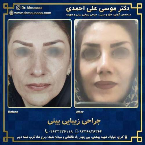 جراحی زیبایی بینی در کرج 16