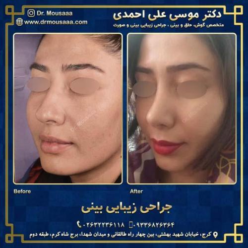 جراحی زیبایی بینی در کرج 20