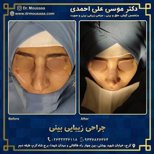 جراحی زیبایی بینی در کرج 210