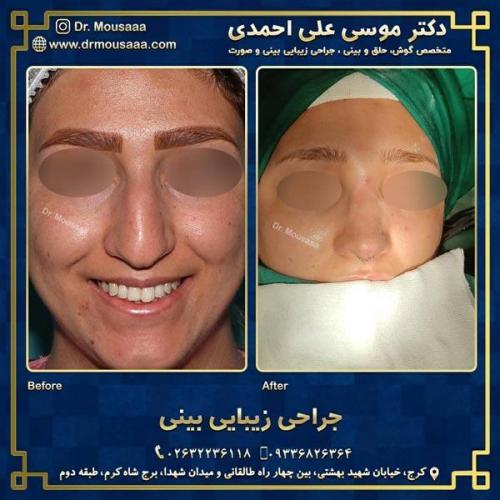 جراحی زیبایی بینی در کرج 213