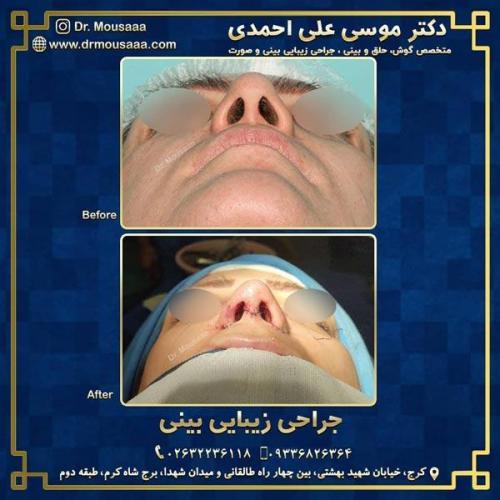 جراحی زیبایی بینی در کرج 219