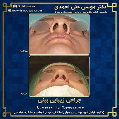 جراحی زیبایی بینی در کرج 221