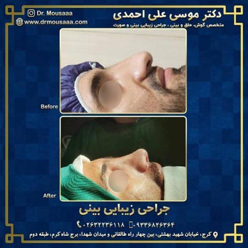 جراحی زیبایی بینی در کرج 230