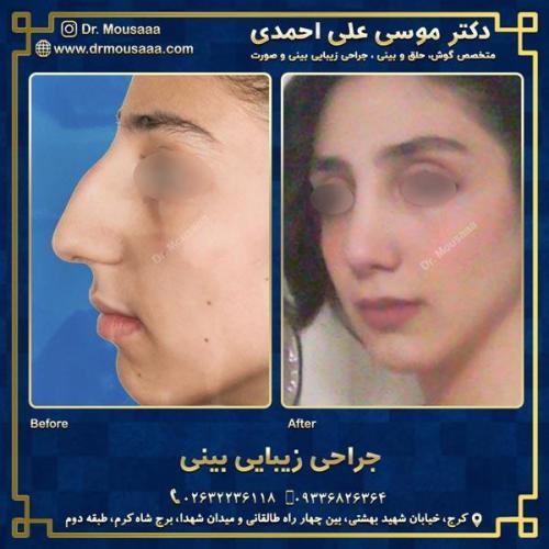 جراحی زیبایی بینی در کرج 37