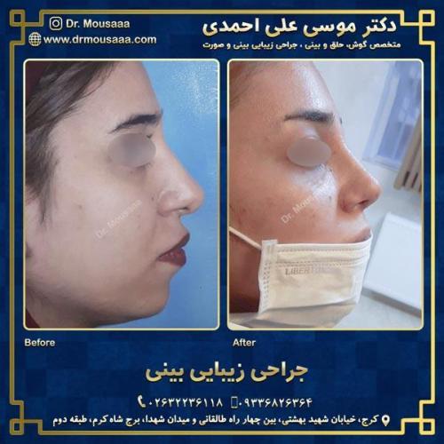 جراحی زیبایی بینی در کرج 39
