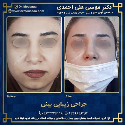 جراحی زیبایی بینی در کرج 41