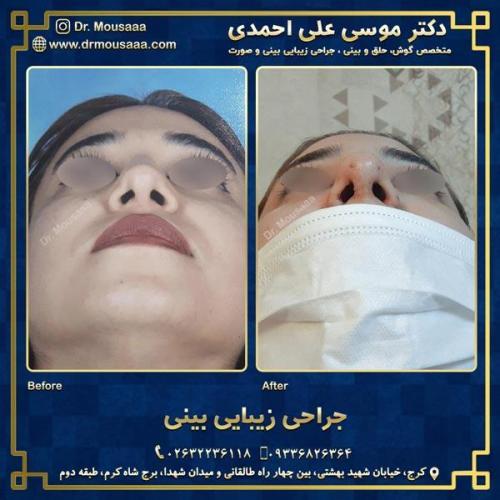 جراحی زیبایی بینی در کرج 42