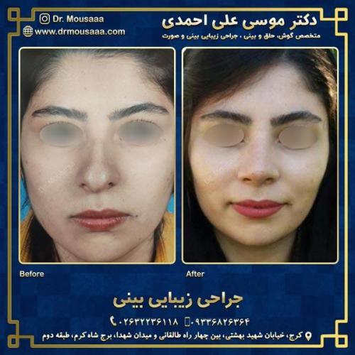 جراحی زیبایی بینی در کرج 48