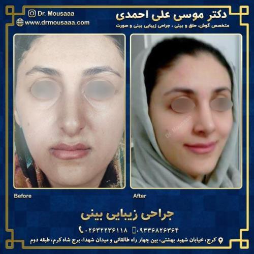 جراحی زیبایی بینی در کرج 49