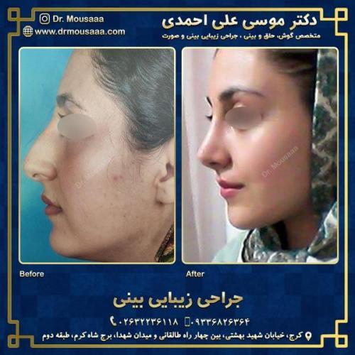 جراحی زیبایی بینی در کرج 51