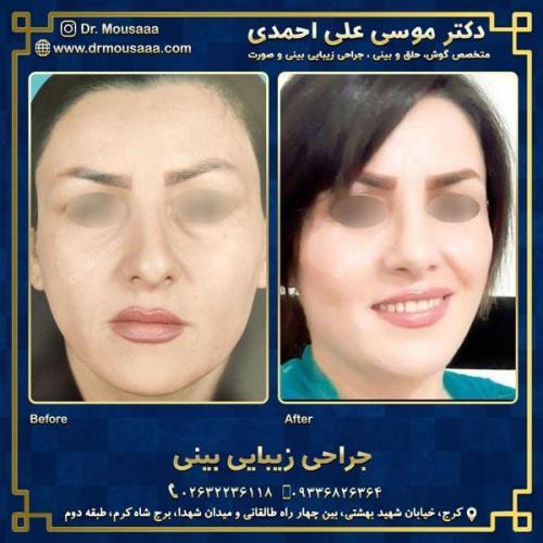 جراحی زیبایی بینی در کرج 55