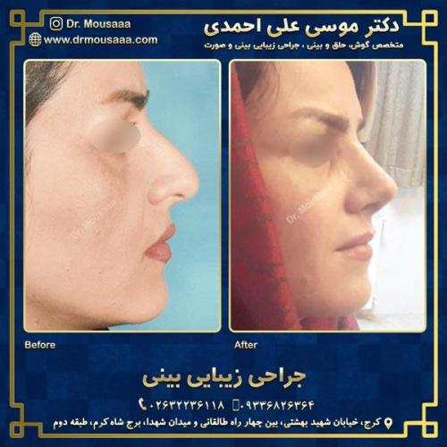 جراحی زیبایی بینی در کرج 56