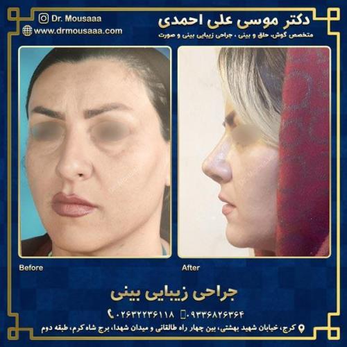 جراحی زیبایی بینی در کرج 58