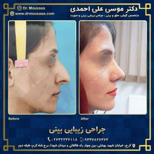 جراحی زیبایی بینی در کرج 60