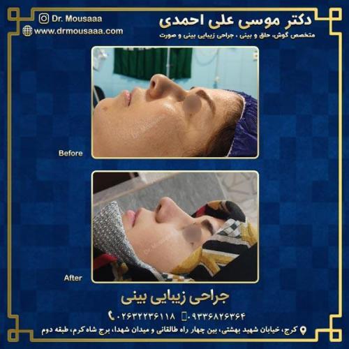 جراحی زیبایی بینی در کرج 72