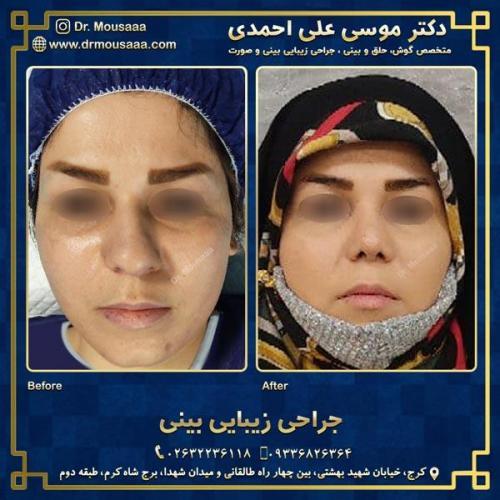 جراحی زیبایی بینی در کرج 73