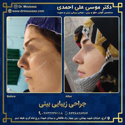 جراحی زیبایی بینی در کرج 74