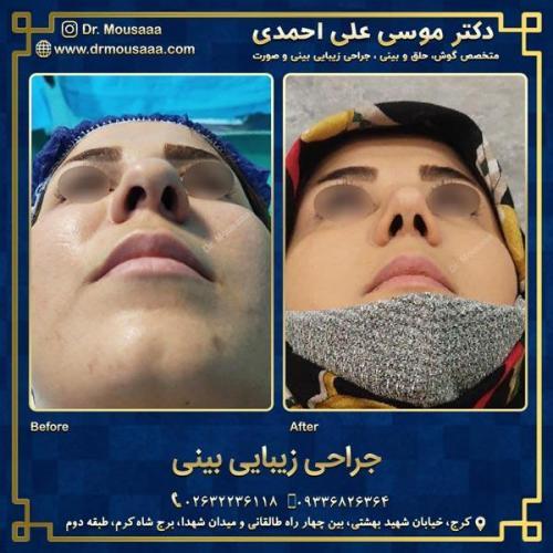 جراحی زیبایی بینی در کرج 75
