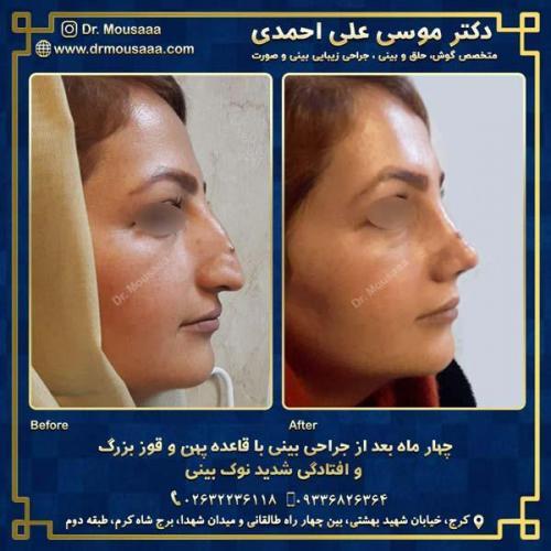 جراحی زیبایی بینی در کرج 8