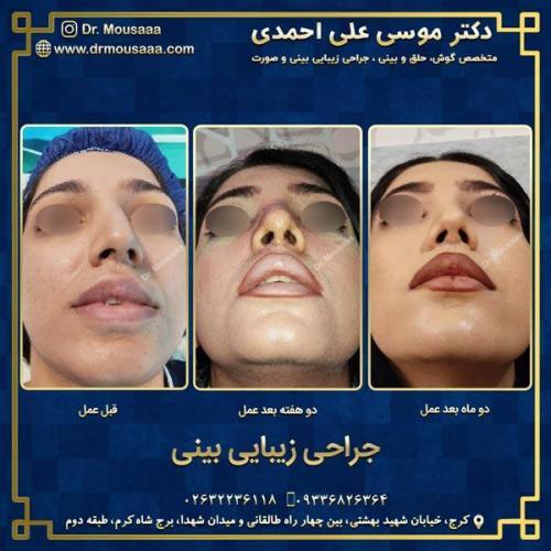 جراحی زیبایی بینی در کرج 80