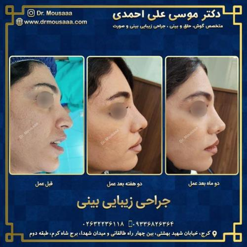 جراحی زیبایی بینی در کرج 81