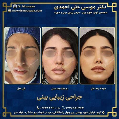 جراحی زیبایی بینی در کرج 82