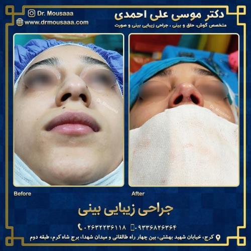 جراحی زیبایی بینی در کرج 84