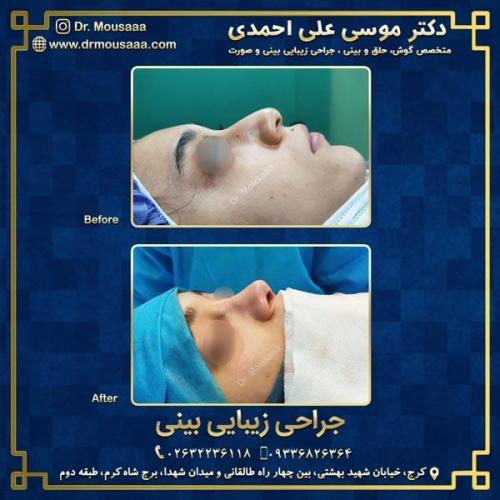 جراحی زیبایی بینی در کرج 85