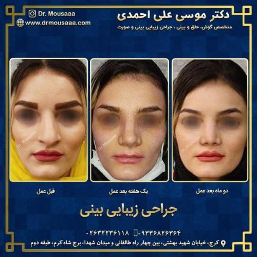 جراحی زیبایی بینی در کرج 86