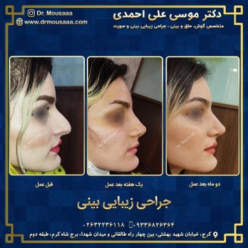 جراحی زیبایی بینی در کرج 87
