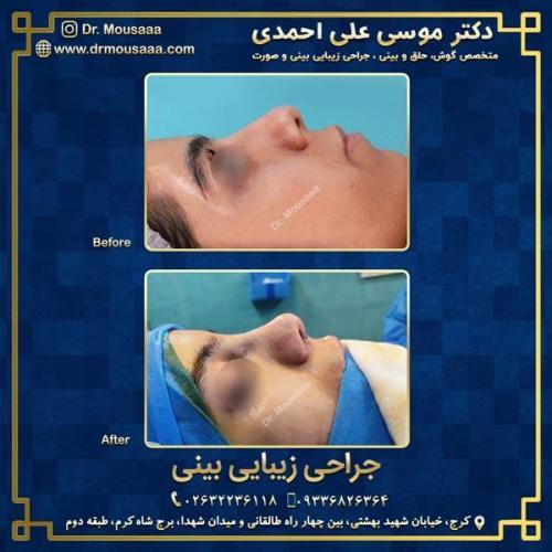 جراحی زیبایی بینی در کرج 89