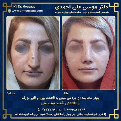 جراحی زیبایی بینی در کرج 9