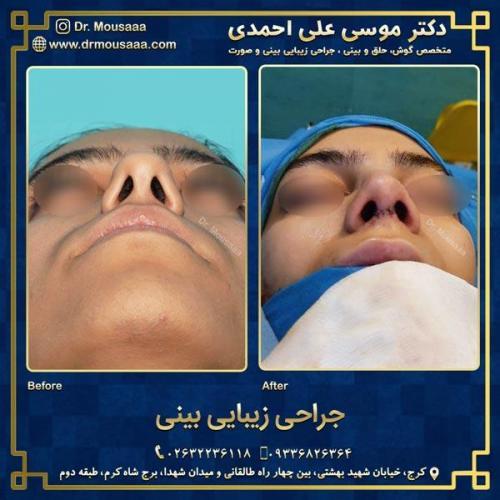 جراحی زیبایی بینی در کرج 90