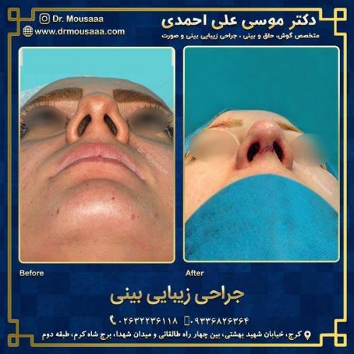جراحی زیبایی بینی در کرج 91