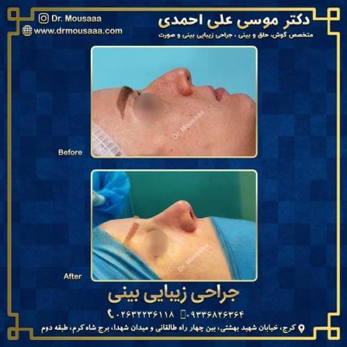 جراحی زیبایی بینی در کرج 92