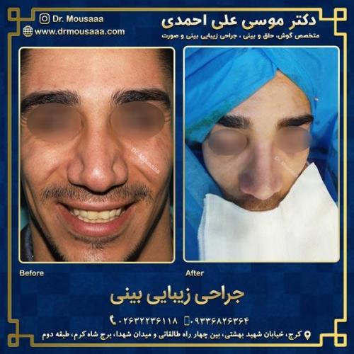 جراحی زیبایی بینی در کرج 93
