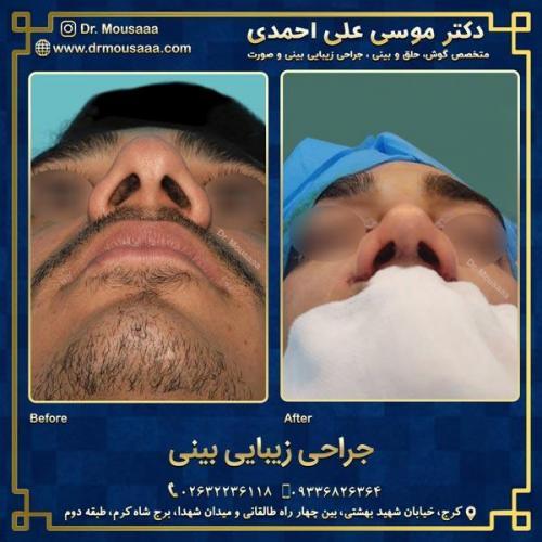 جراحی زیبایی بینی در کرج 94