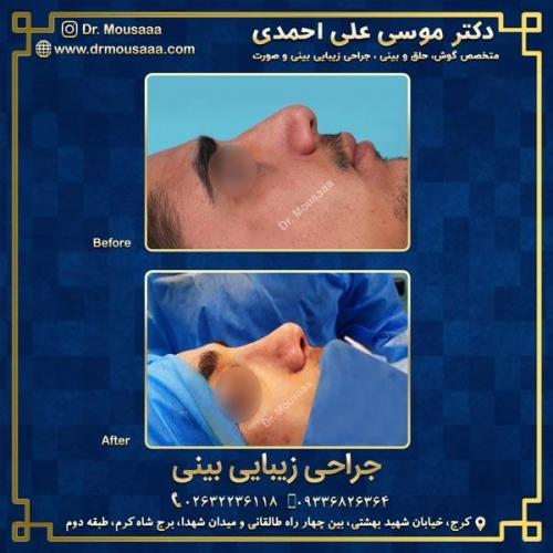 جراحی زیبایی بینی در کرج 95