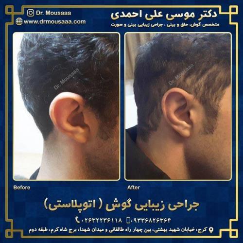 جراحی زیبایی گوش در کرج 2