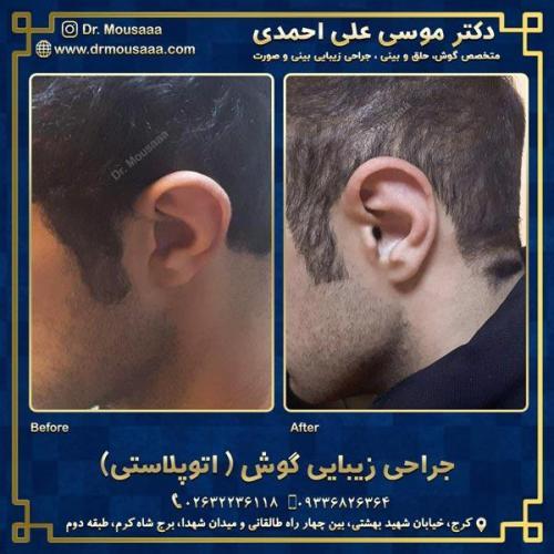 جراحی زیبایی گوش در کرج 3