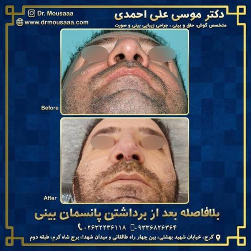 جراحی زیبایی بینی در کرج 207