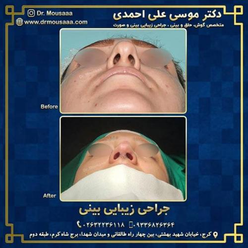 جراحی زیبایی بینی در کرج 212