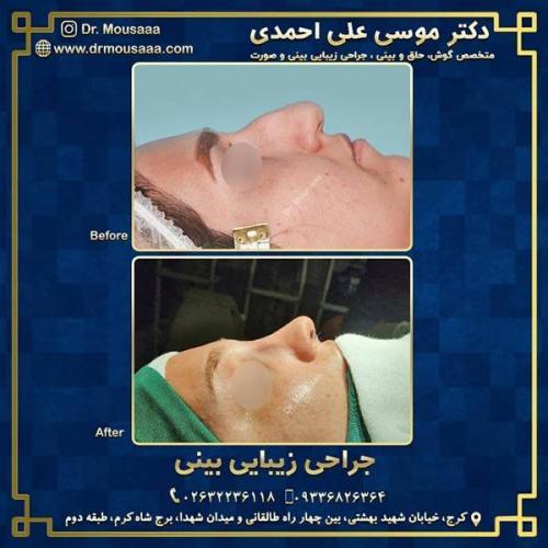جراحی زیبایی بینی در کرج 214