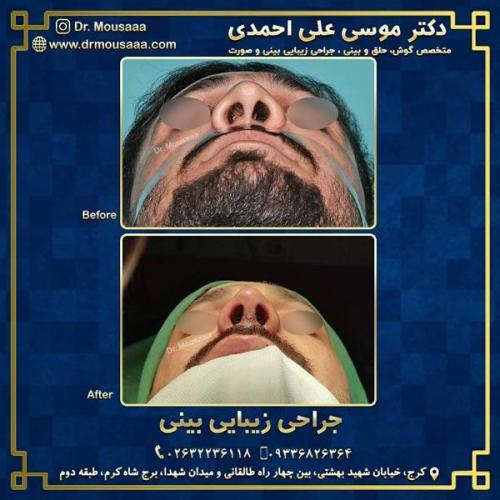 جراحی زیبایی بینی در کرج 215
