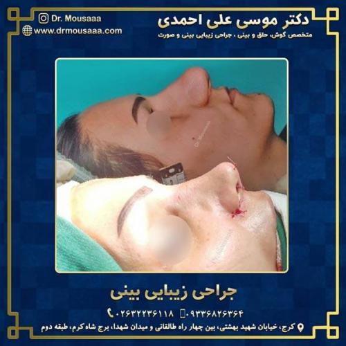 جراحی زیبایی بینی در کرج 224