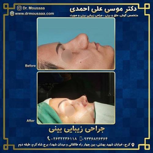 جراحی زیبایی بینی در کرج 227