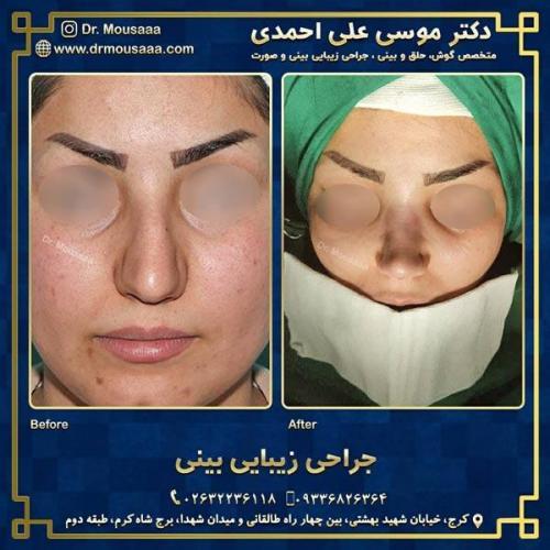 جراحی زیبایی بینی در کرج 233